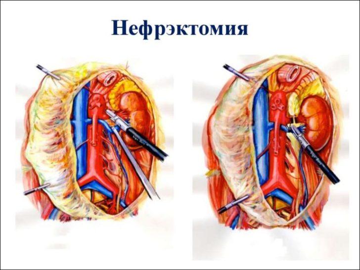 Нефрэктомия (схема)
