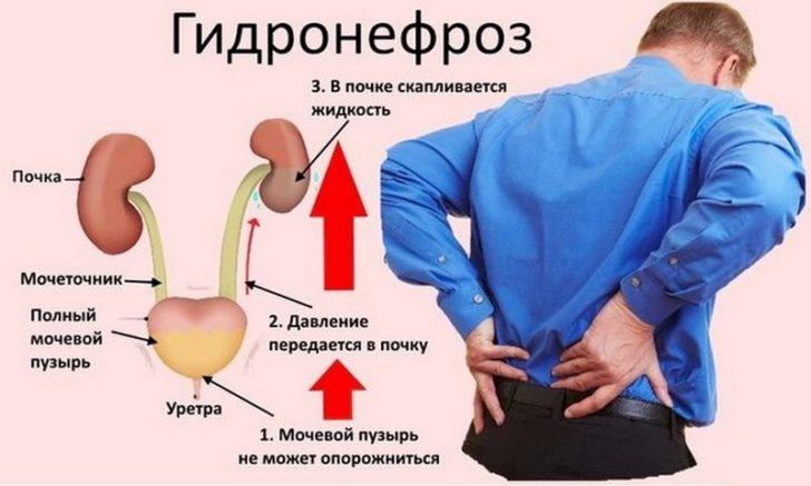 Механизм развития гидронефроза