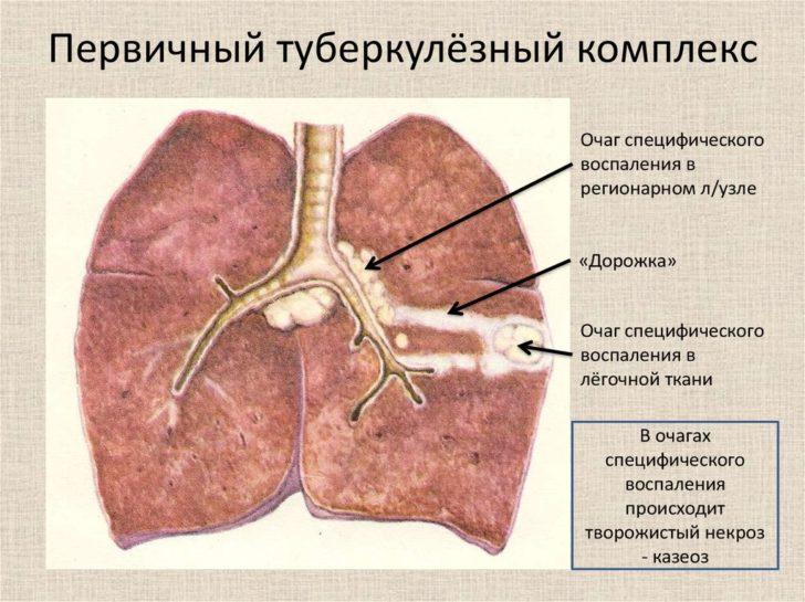 Первичный туберкулёзный очаг