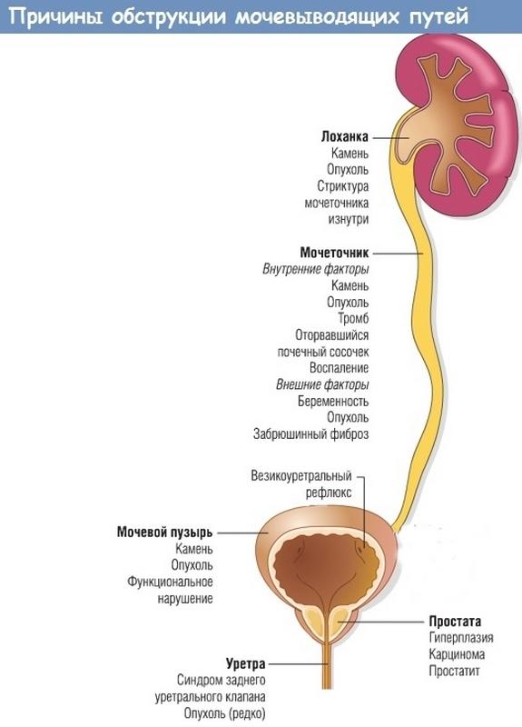 Причины обструкции мочевыводящих путей