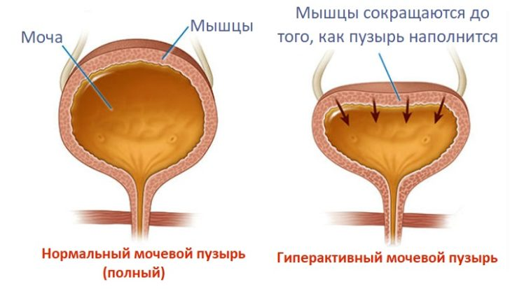 Нейрогенный и нормальный мочевой пузырь