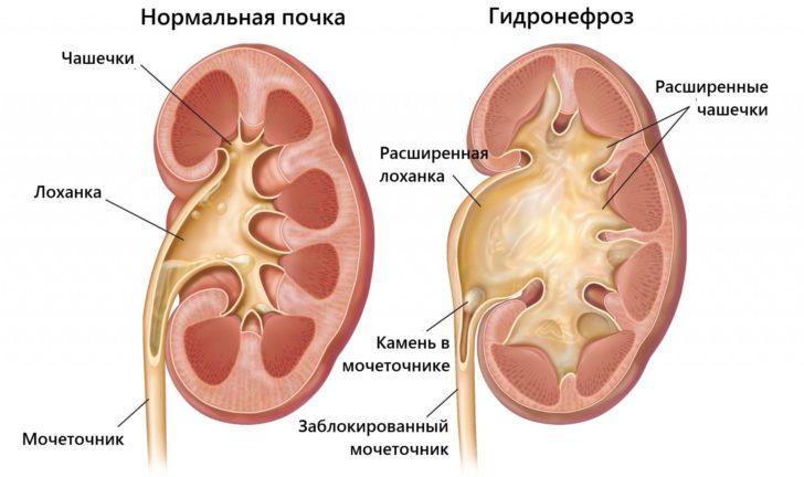 Здоровая почка и при гидронефрозе