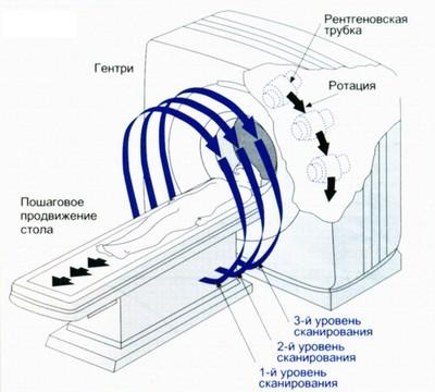 Схема спирального сканирования
