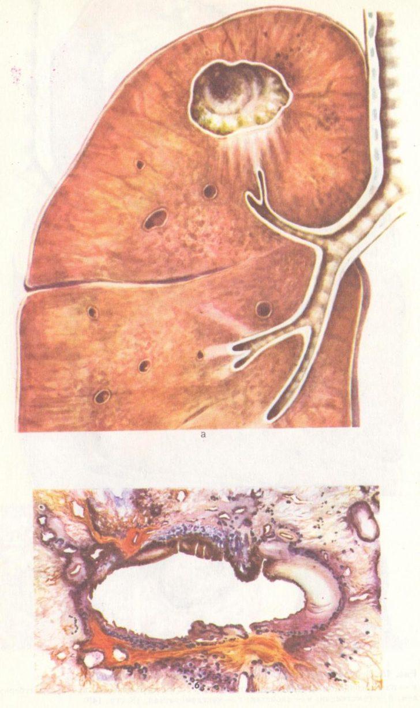 Туберкулёзная каверна