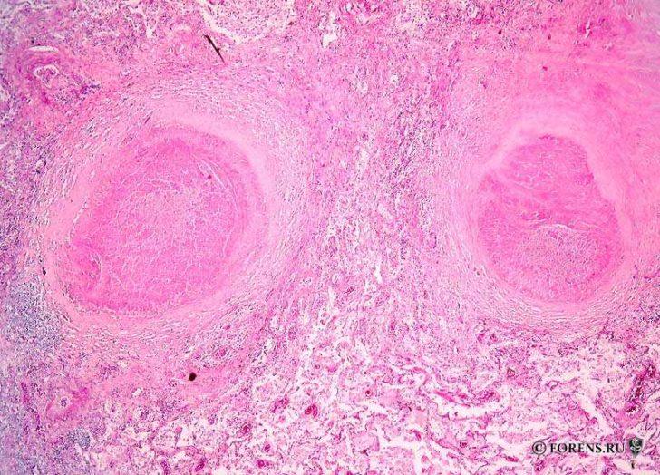 Туберкулёзные гранулёмы (вид под микроскопом)