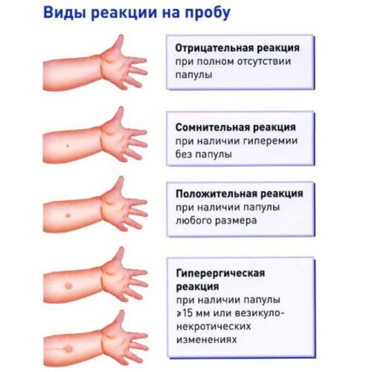 Виды реакции на введение туберкулина (схема)
