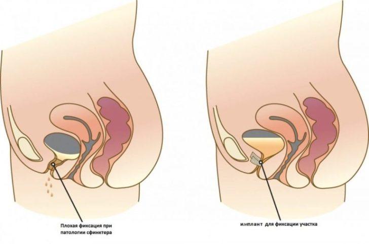 Фиксация уретры синтетическим имплантом
