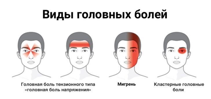 Локализация различных видов головной боли