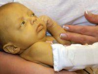 Новорождённый с желтухой