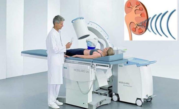 Пациент на процедуре литотрипсии