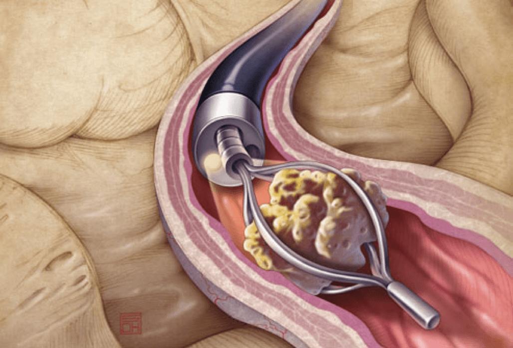 Последствие калькулезного простатита геморрой и простатит