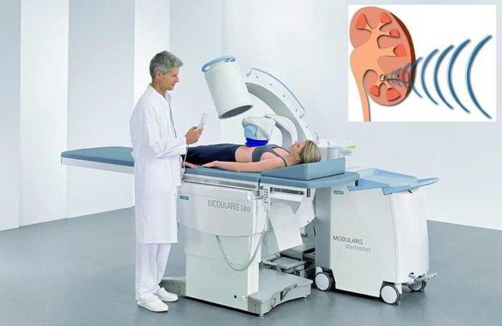 Процедура ударно-волновой литотрипсии