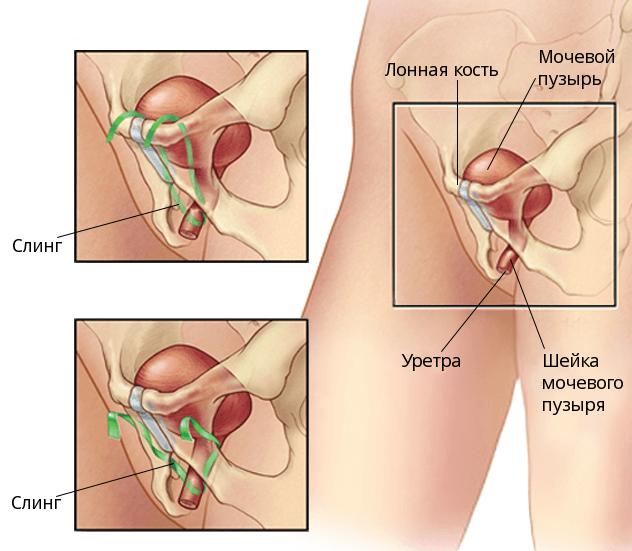 Слинговая операция