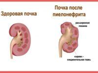Здоровая почка и почка при пиелонефрите