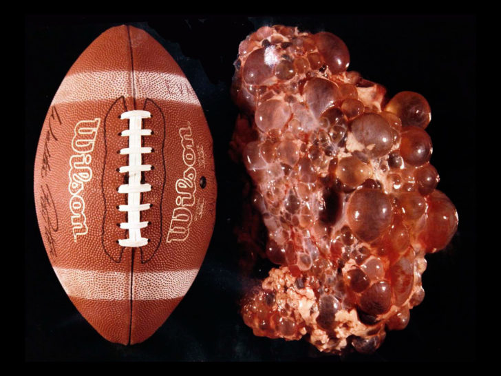 Футбольный мяч и больная почка