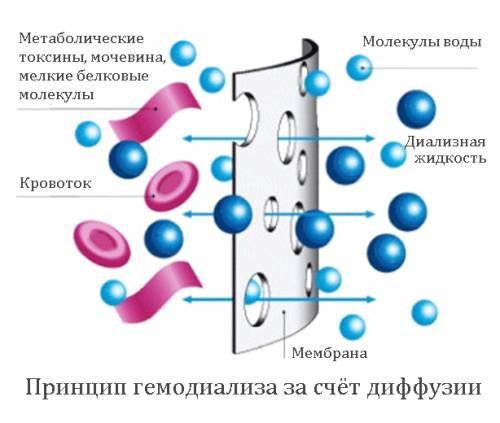 Гемодиализ с помощью диффузии
