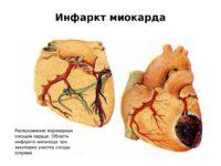 Инфаркт миокарда (схема)