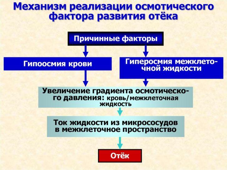 Механизм развития отёков при нефротическом синдроме