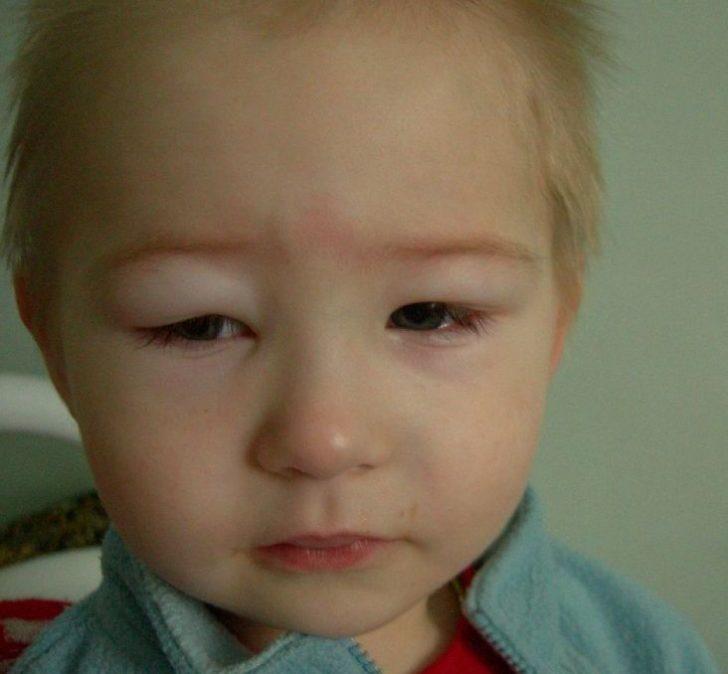 Отёки на лице ребенка