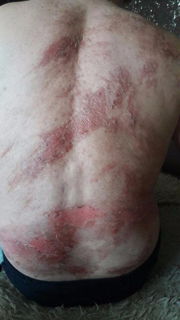 Повреждения кожи