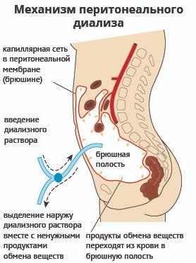 Перитонеальный диагноз (схема)
