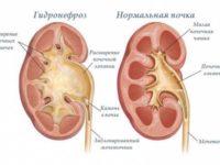 Почка при гидронефрозе и здоровая почка