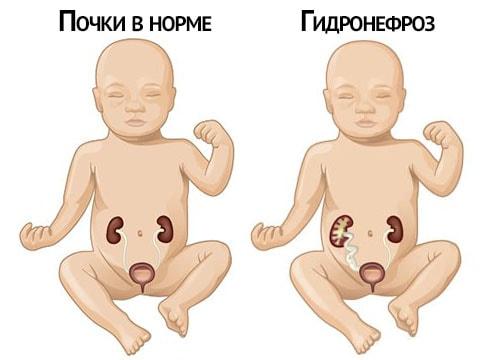 Почки в норме и при гидронефрозе