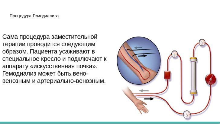 Проведение гемодиализа