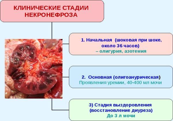 Стадии развития острого некронефроза