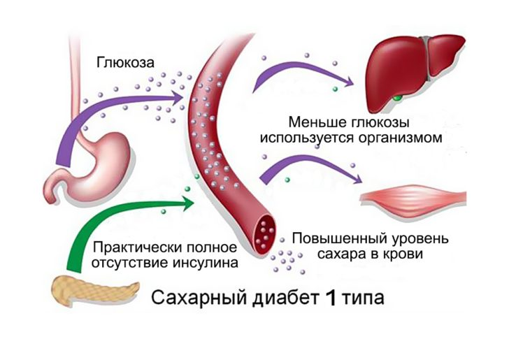 Сахарный диабет 1 типа (схема)