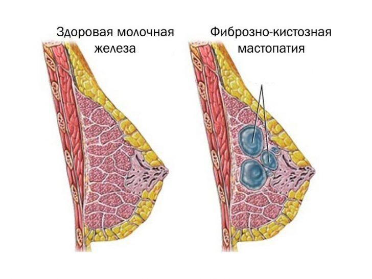 Для этого должны произойти определенные изменения в тканях груди.