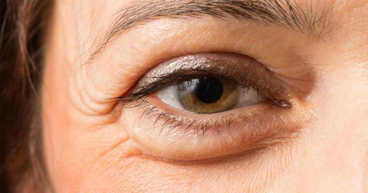 глаз с отёком