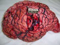 Головной мозг с абсцессом
