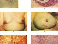 Изменение цвета и структуры кожи при раке молочной железы