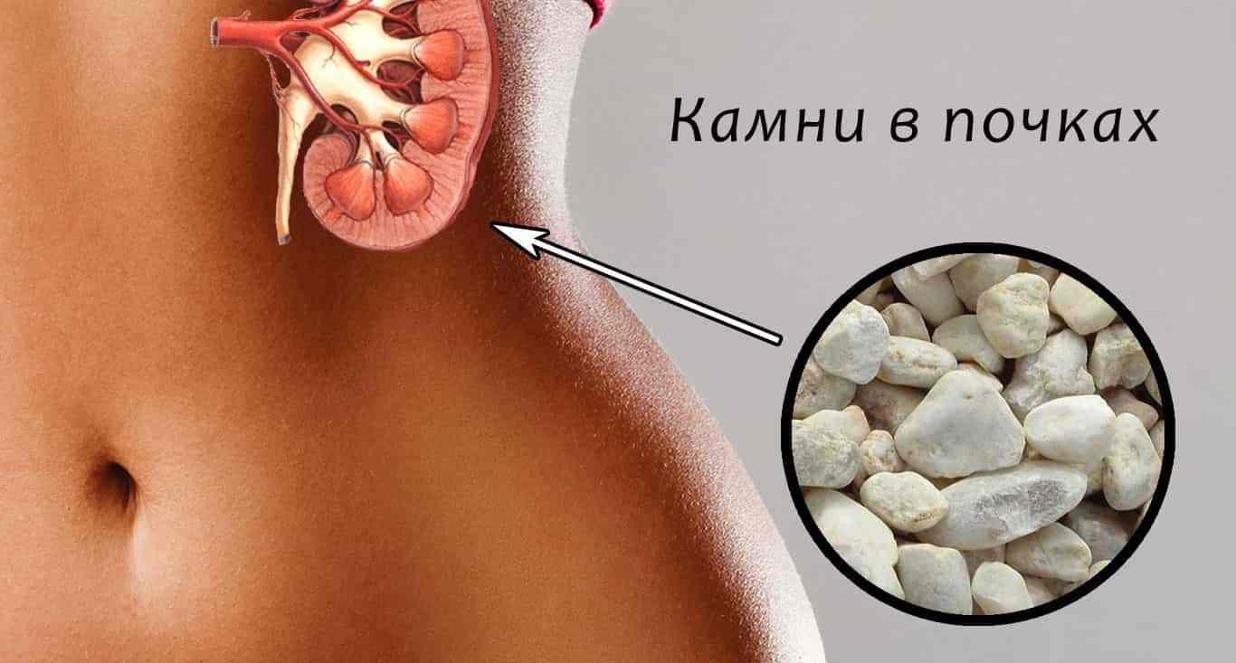 Как растворить камни в почках: медикаменты и диета