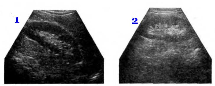 УЗ- сканограммы нормальной почки