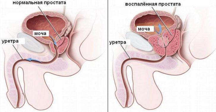 Нормальная предстательная железа и простатит