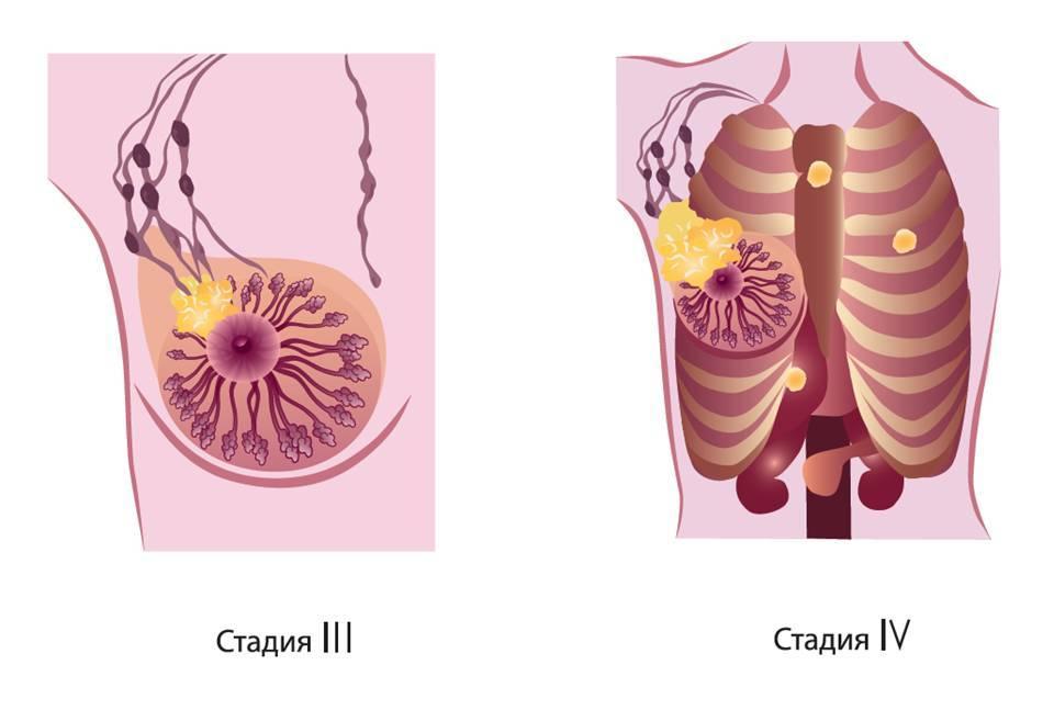 клетки стадия лечению