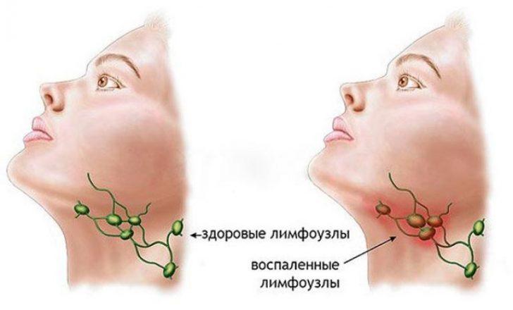 Сравнение здоровых и воспалённых лимфоузлов