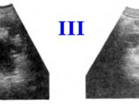 Третья стадия гидронефроза