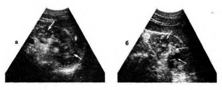 Туберкулёз почки на УЗИ-снимках