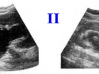 Вторая стадия гидронефроза