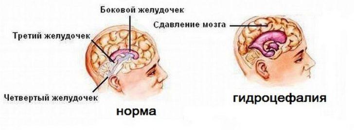 Анатомия мозга в норме и при гидроцефалии