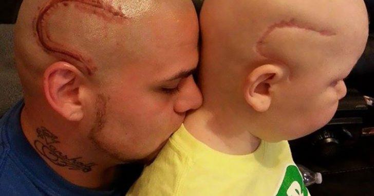 Мужчина и ребёнок со шрамами на голове