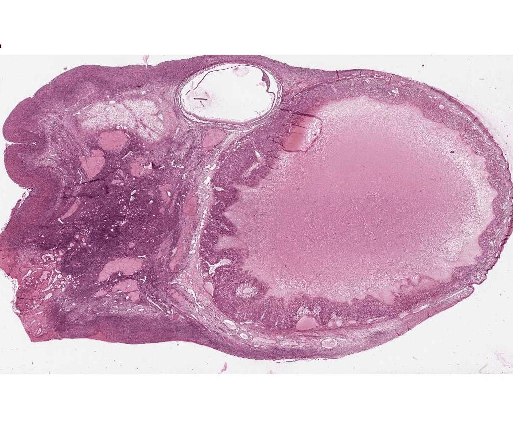 Каковы причины возникновения кисты яичников у женщин