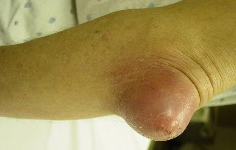 Болит и опух локоть на изгибе боль в мышцах и суставах народные лечебные методы