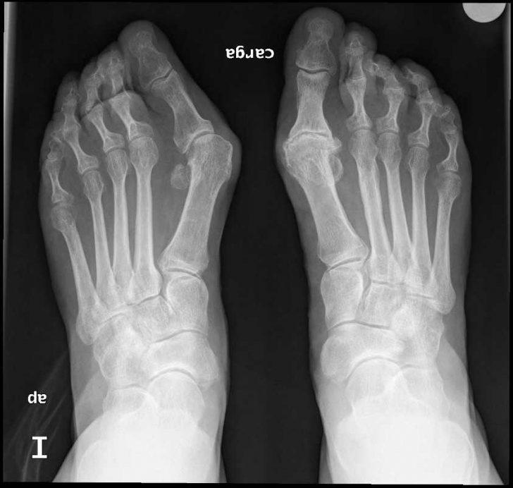 Hallux valgus на рентгеновском снимке