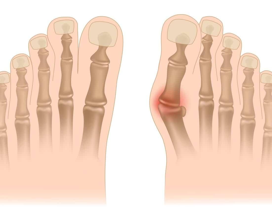 Деформации суставов: почему возникает шишка на большом пальце ноги и как от неё избавиться