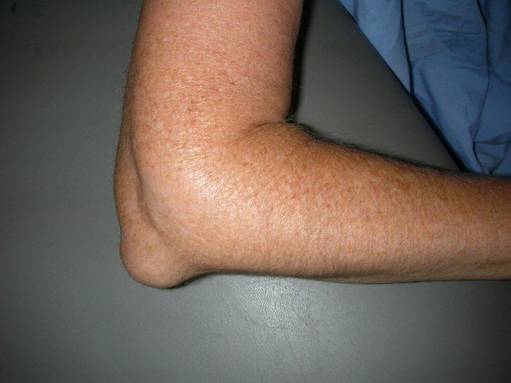 Хронический локтевой бурсит