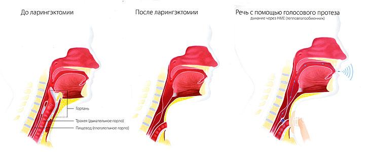 Картина до и после ларингэктомии